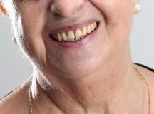 SAÚDE: Casos de câncer oral na faixa de 30 a 44 anos duplica em 10 anos