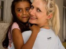 Operação Sorriso realiza 65 cirurgias gratuitas em portadores de fissuras labiopalatais em Santarém, no Pará